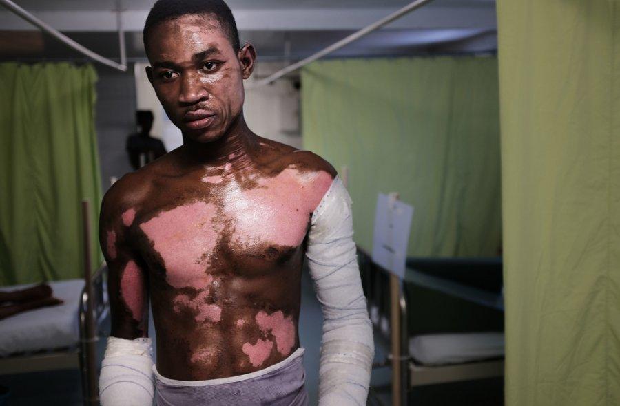 Шнайдер Аврил, получивший тяжелые ожоги при взрыве пропановой цистерны, проходит лечение в больнице MSF Друйяр в Порт-о-Пренсе. Гаити, февраль 2018 г.