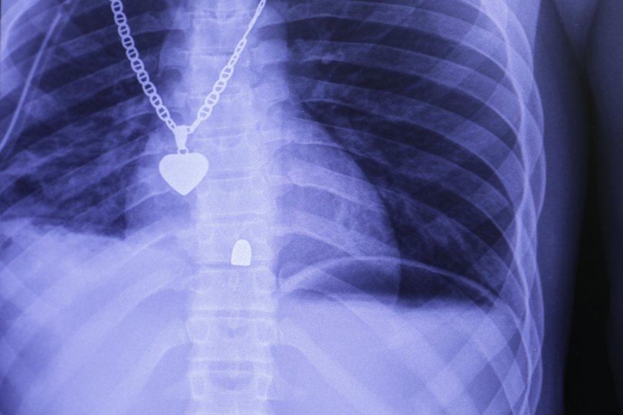 Рентгеновский снимок, сделанный в больнице скорой травматологической помощи в районе Табарре, Порт-о-Пренс. На снимке видна пуля, застрявшая в позвоночнике пациента. Гаити, декабрь 2019 г.